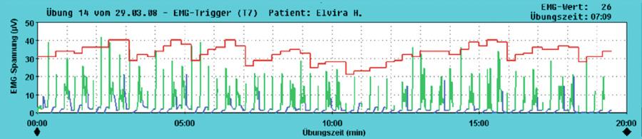 3T®: Drei-Ziele-Behandlung mit CONTRAIN®